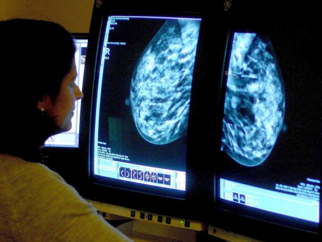 File photo dated 15/06/06 of a consultant analyzing a mammogram, as giving breast cancer patients a targeted dose of radiotherapy during surgery would save them millions of miles travelling to and from hospital appointments, according to a study. PRESS AS