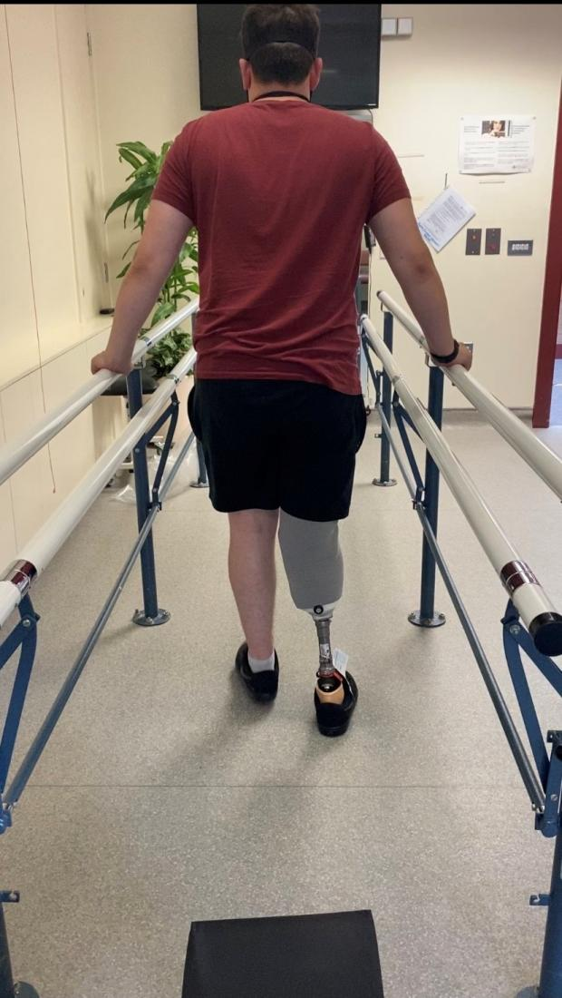 County Times: Brett now walks with a prosthetic right leg.